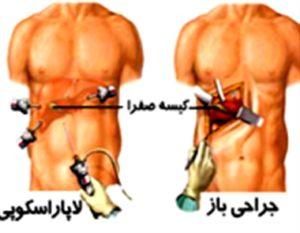 عمل لاغری معده در تهران، تفاوت جراحی باز و لاپاراسکوپی