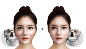 عمل جراحی لاغری صورت، کاهش استخوان گونه