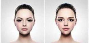 عمل جراحی لاغری صورت، کاهش خط v