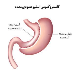 عملهای بیخطر لاغری، گاسترکتومی اسلیو